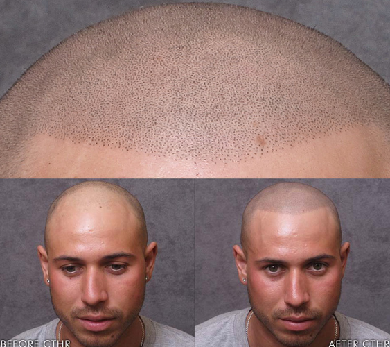 Bald guys find interesting way to deal with lack of hair for Hair tattoo cost